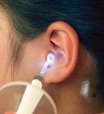 LEDで照らす拡大鏡つき耳かき画像01